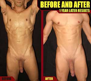 Awesome Penis Enlargement Before and After… Male Enhancement Picture Gallery.