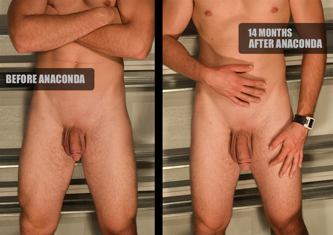 A permanently longer penis (thicker too) is within your reach. As seen in this Penis Stretching Before and After, a man's size can be increased through traction devices. These results were obtained using the Anaconda Stretcher by Hardwear. Photo Subject: penis enlargement before and after, male enhancement results, penis exercise, dick stretching.
